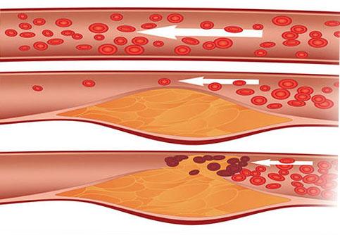 Какво е холестерол