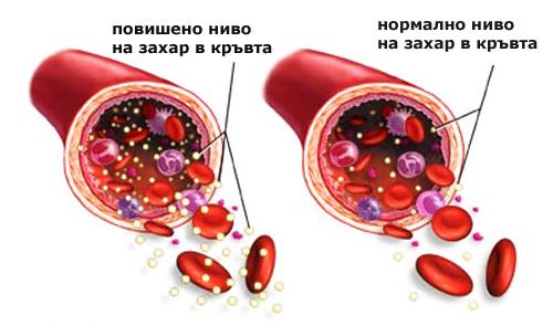 нормално ниво на захар в кръвта