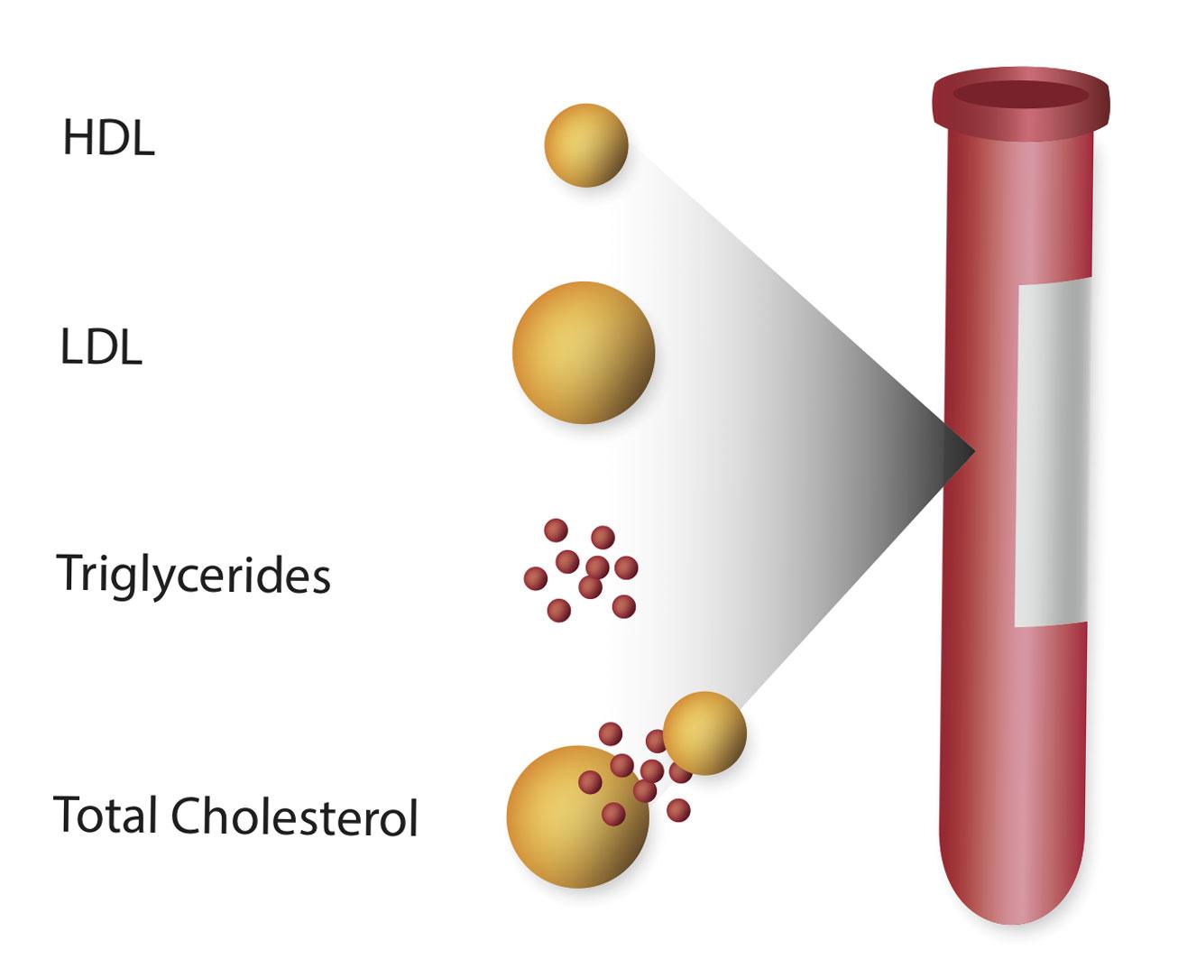 профил на липидите в организма