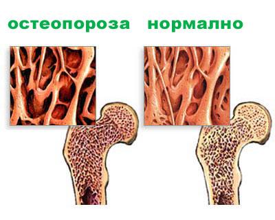 кръвни изследвания на калций