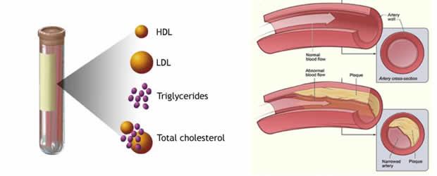 изследвания на триглицериди