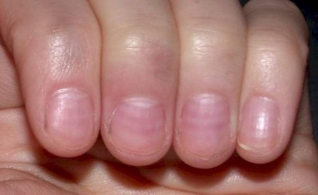 проблеми с ноктите