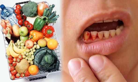 симптоми за липса на витамин с