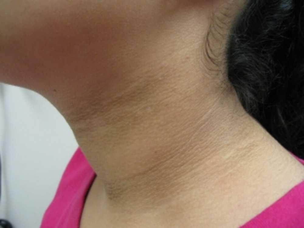 тъмни петна по кожата акантоза