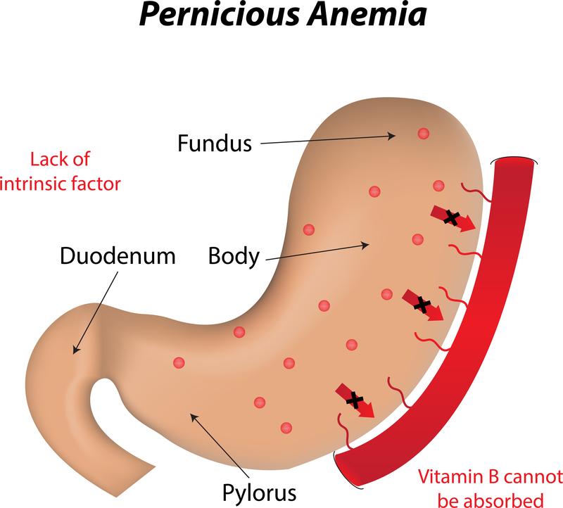 Дефицитът на В12 предизвиква анемия