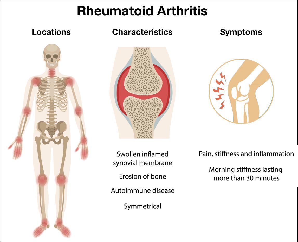 изследвания ревматоиден артрит