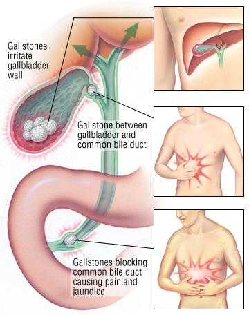 Симптоми на възпалена жлъчка