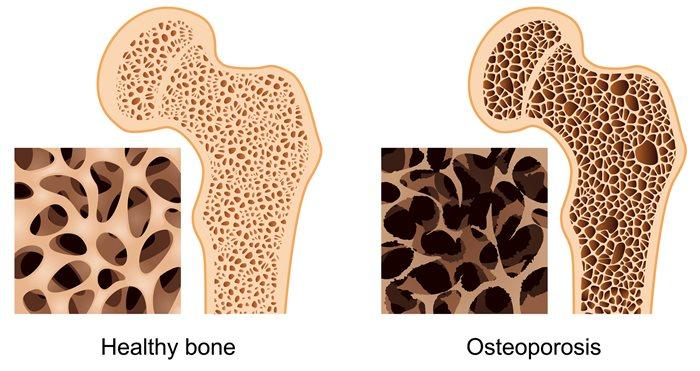 Микроелементи, които са важни за костите