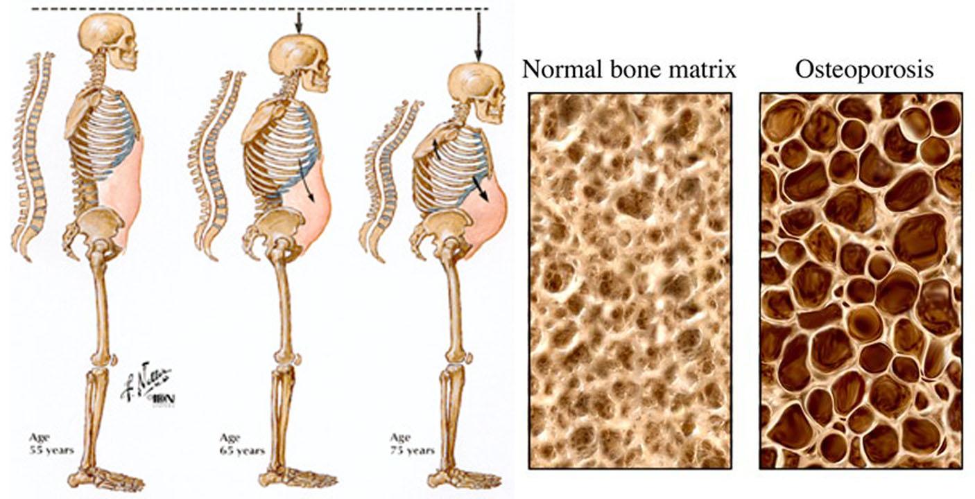 микроелементи и витамини при остеопороза