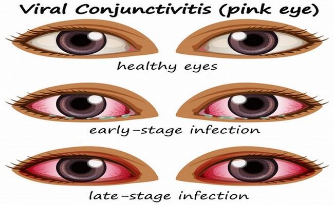 Причини за конюнктивит