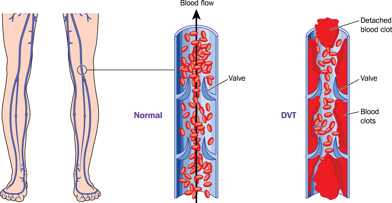 изследвания при тромб