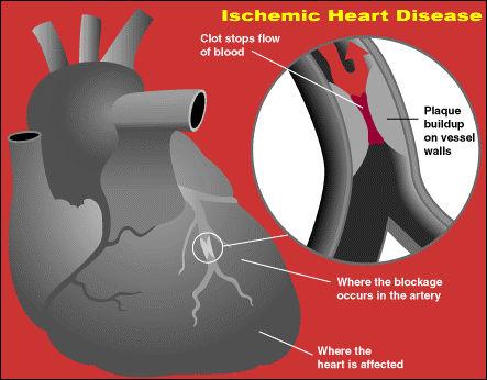 Исхемична болест на сърцето и В12